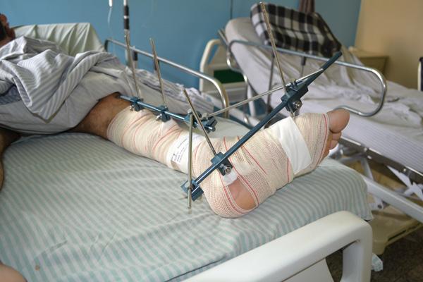 Maioria dos pacientes de traumatologia do HURSO são vítimas de acidente de moto