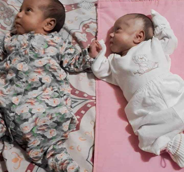 Primeiro caso de gêmeas prematuras no HURSO tem final feliz